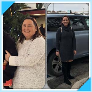 Chiara McCool before and after bariatric surgery