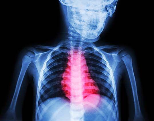 Heart-image-skeleton