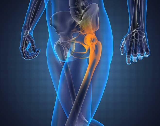 hip-bone-659-x-519
