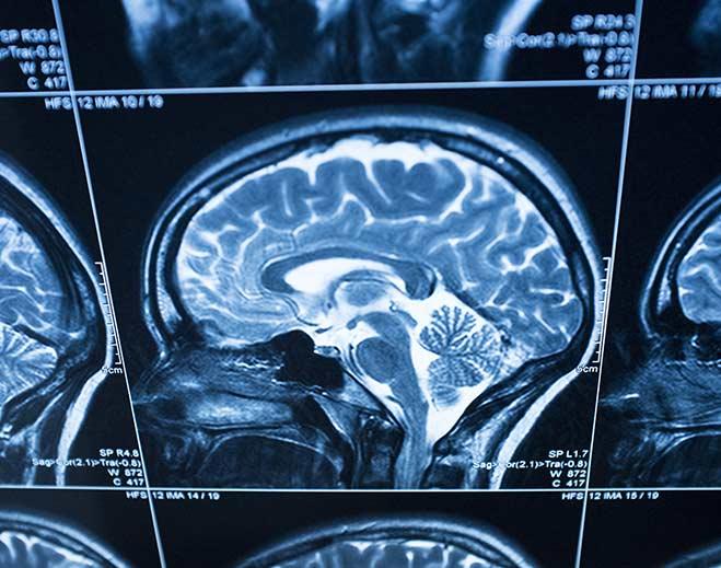 neurology-brain-scan-mri