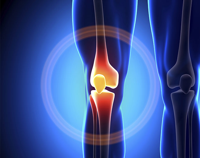 orthopedics-knee-joint-pain-relief-replacement